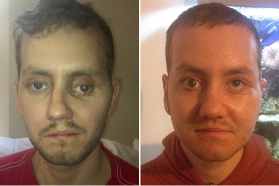 Patient before and after facial reconstruction